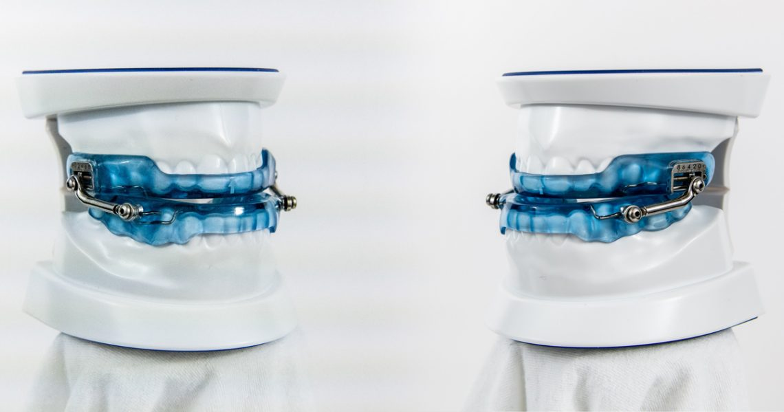 ApneaGuard Oral Appliance Therapy