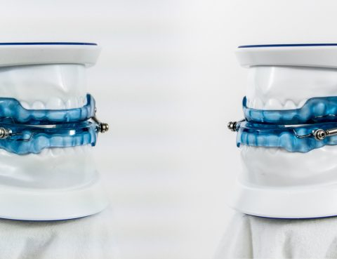 ApneaGuard Oral Appliance Therapy